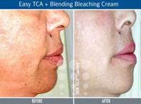 Wie die dunklen Flecke auf der Gesichtshaut zu entfernen